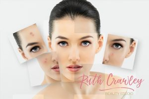 Collagen Induction Therapy Maitland & Hunter Valley  Micro Skin Needling   Micro Needling   Beauty Therapy