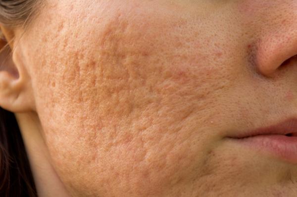 Dermapen Skin Needling Ruth Crawley Beauty